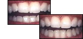 before and after enamel shaping
